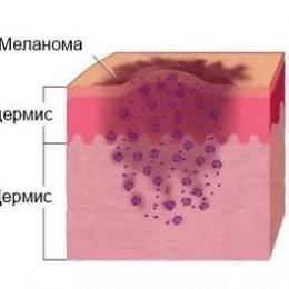 Лечение меланомы